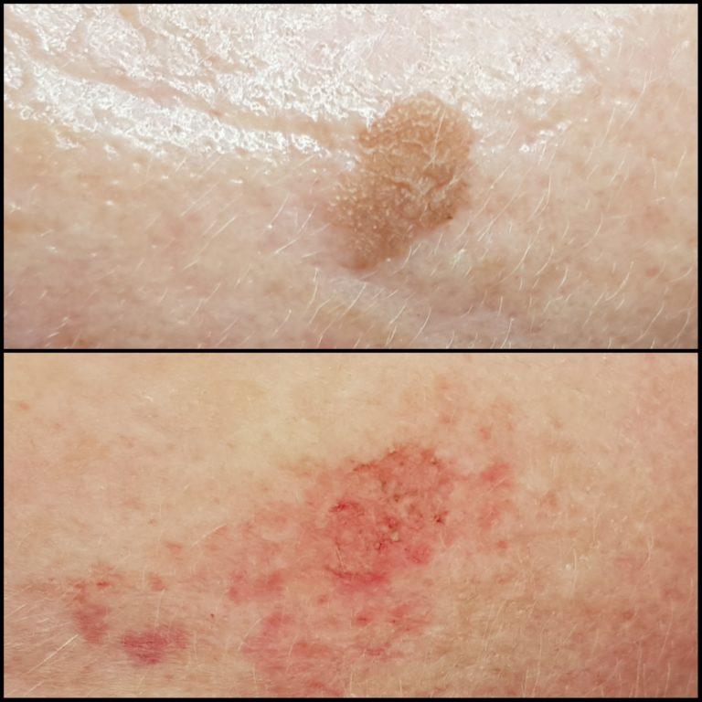 huidverstoring
