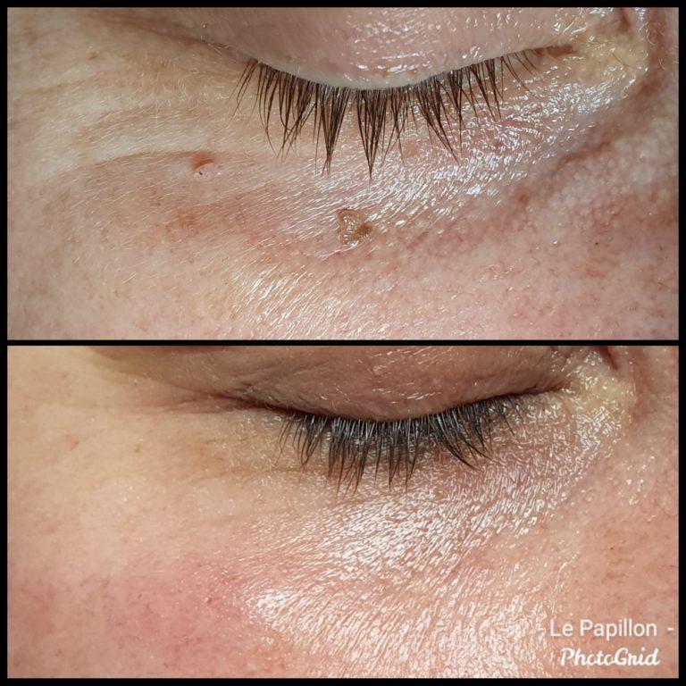 huidverstoring verwijderen